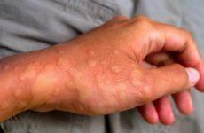 Nổi mề đay: Nguyên nhân, triệu chứng và cách điều trị an toàn, hiệu quả