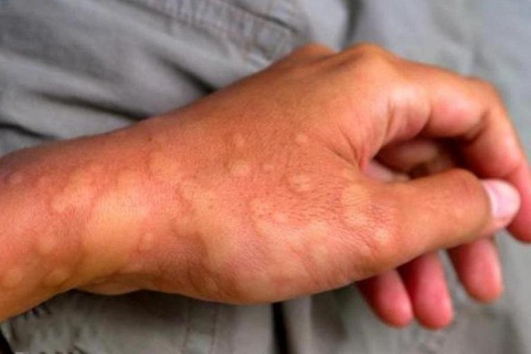 Nổi mề đay thành mảng lớn trên da