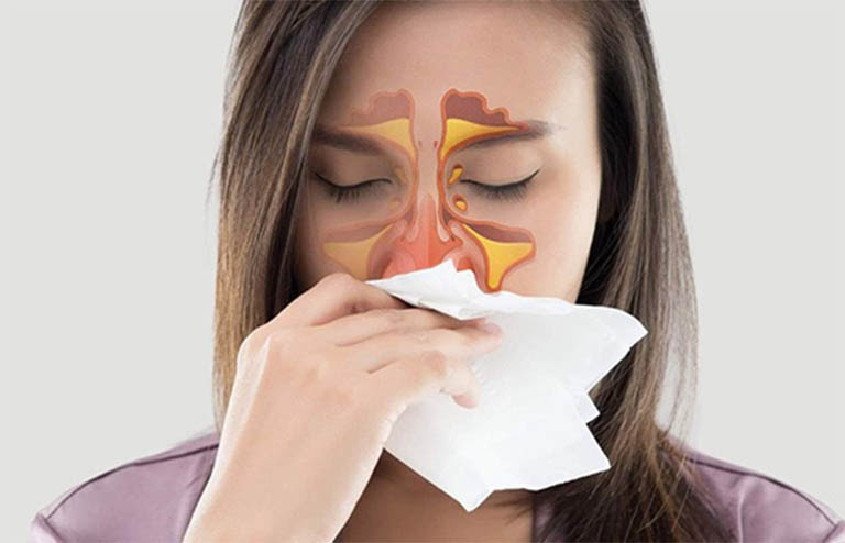 Viêm mũi xuất tiết là tình trạng xuất hiện dịch nhầy trong mũi và họng người bệnh