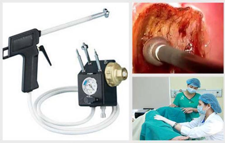 Phương pháp áp lạnh điều trị vùng lộ tuyến nhanh chóng và không gây đau đớn