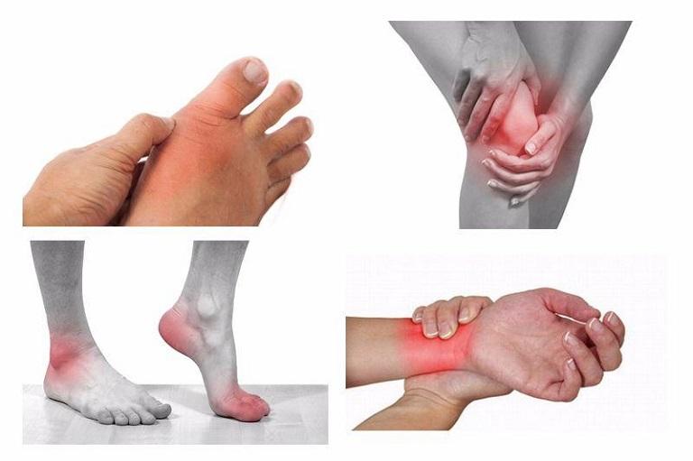 Viêm khớp có thể xảy ra ở bất cứ vị trí khớp nào trên cơ thể