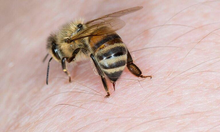 Chữa bệnh khớp bằng ong châm có thực sự hiệu quả?