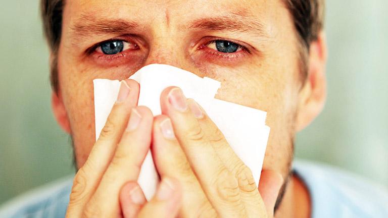 Viêm mũi dị ứng bội nhiễm là giai đoạn biến chuyển nặng hơn của viêm mũi dị ứng