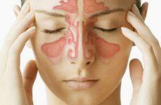 Viêm xoang nhức đầu và những nguy hiểm bệnh có thể gây ra