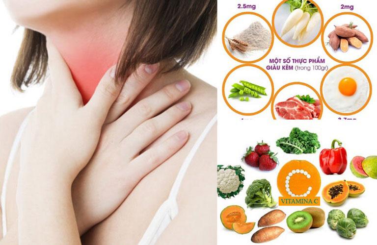 Người bệnh cần điều chỉnh chế độ dinh dưỡng hợp lý để hỗ trợ chữa bệnh