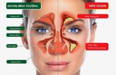 Bệnh viêm xoang mũi là một trong những bệnh lý thuộc hệ xoang đang phổ biến hiện nay