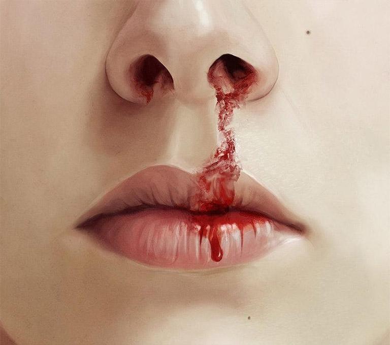 Viêm xoang chảy máu mũi là triệu chứng không thể chủ quan