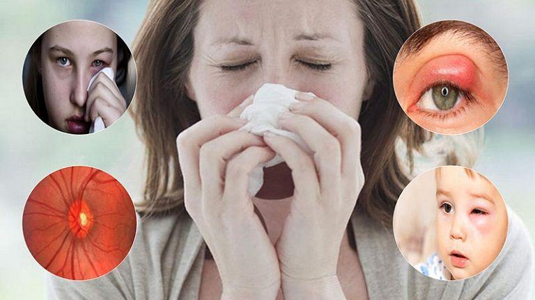 Bệnh viêm xoang có thể dẫn đến những biến chứng nguy hiểm cho người bệnh