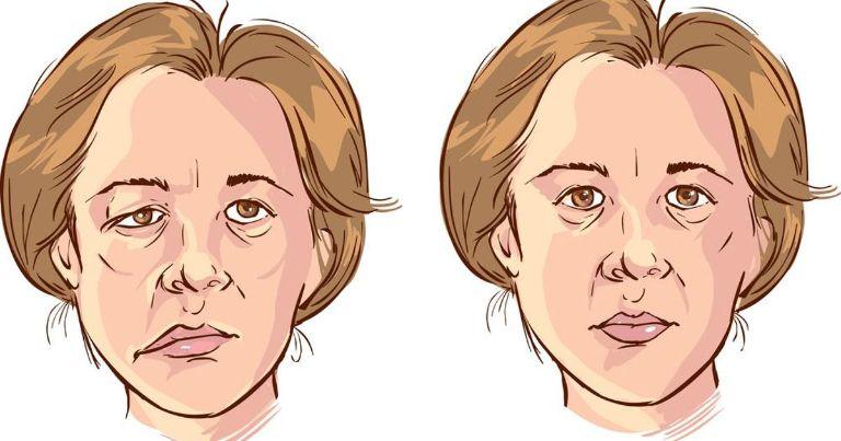 Méo miệng, liệt mặt là biến chứng nguy hiểm của viêm xoang gây sưng mặt