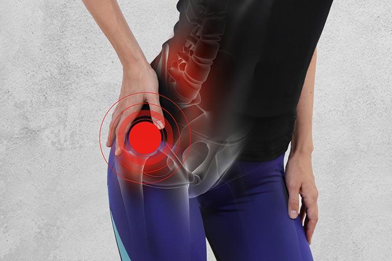 Bệnh viêm khớp háng ảnh hưởng trực tiếp đến khả năng đi lại của bệnh nhân