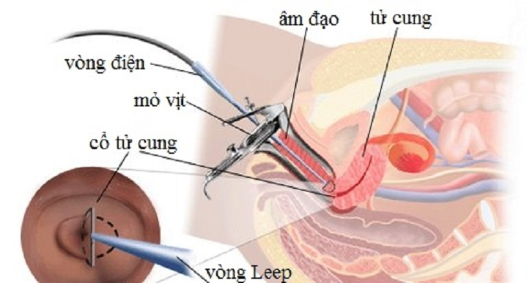 Chữa viêm lộ tuyến bằng LEEP là phương pháp vô cùng phổ biến hiện nay