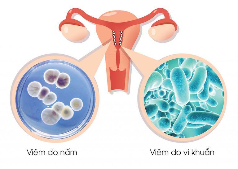 Nguyên nhân chủ yếu gây bệnh là do vi khuẩn nội và ngoại sinh
