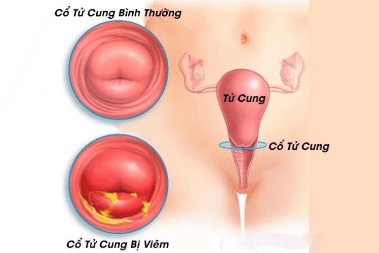 Viêm cổ tử cung đang ngày càng phổ biến và tác động xấu đến sức khỏe
