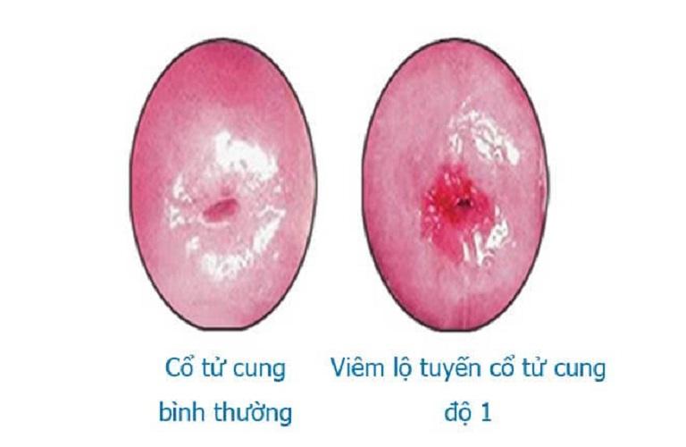 Viêm độ tuyến 5mm là thuộc cấp độ 1
