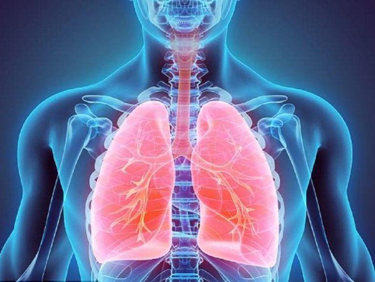Viêm phổi là 1 trong những biến chứng thường gặp của bệnh