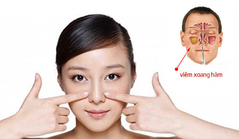 Viêm xoang hàm là tình trạng tổn thương lớp niêm mạc lót xoang hàm