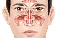 Viêm xoang sau mãn tính là biến chứng nặng của viêm xoang