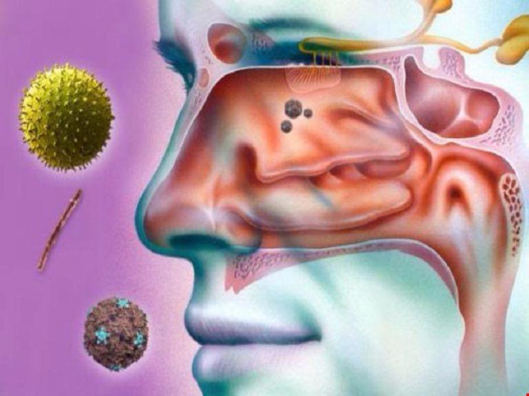 Vi khuẩn là nguyên nhân chính gây ra bệnh