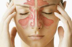 Có rất nhiều cách chữa bệnh viêm xoang hiệu quả