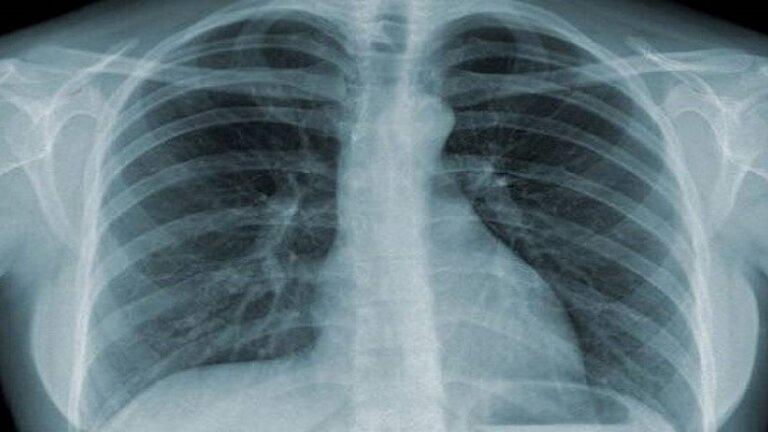 Hình ảnh chụp Xquang giúp phát hiện những bất thường ở tim và phổi