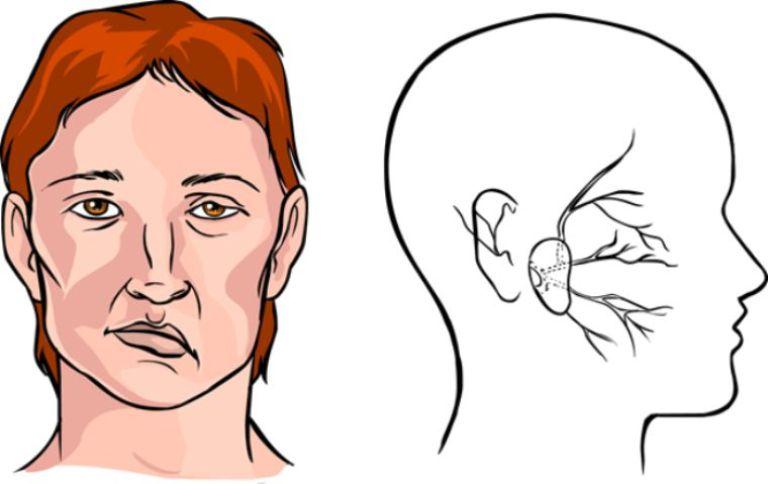 Liệt mặt là biến chứng thường thấy của viêm mũi xoang xuất tiết