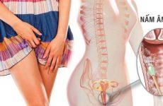 Nấm âm đạo là bệnh phụ khoa phổ biến hiện nay