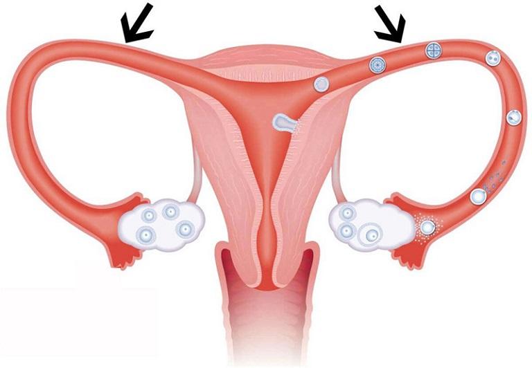 Tắc vòi trứng có thể gây ra vô sinh hiếm muộn ở chị em