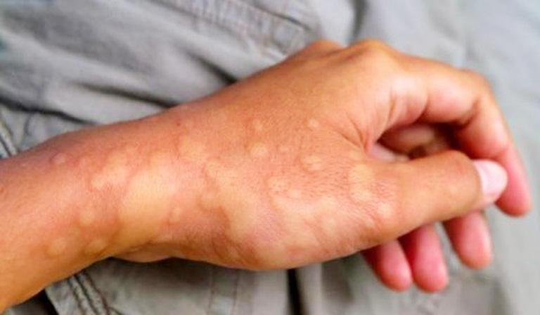 Viêm mũi dị ứng điều hòa có thể dẫn đến phát ban hoặc sốt nếu cơ thể bị sốc nhiệt