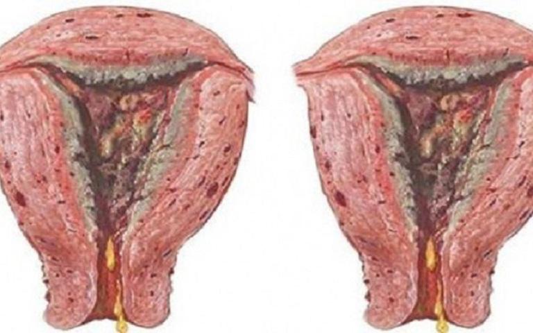 Viêm nhiễm không được điều trị kịp thời có thể gây ra ung thư cổ tử cung vô cùng nguy hiểm