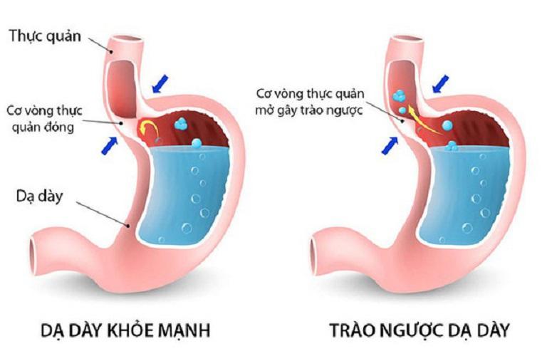 Lý giải về nguyên nhân gây bệnh, cơ chế cơ bản nhất hình thành viêm họng trào ngược đó là hiện tượng trào ngược