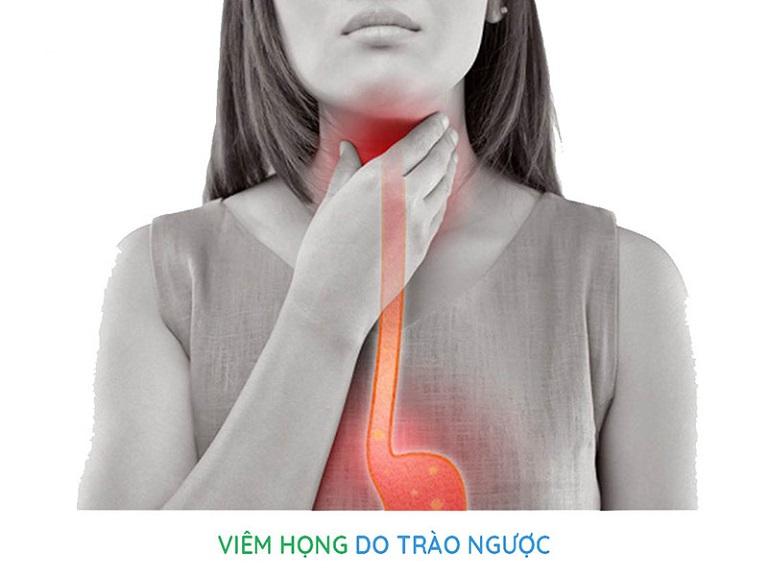 Viêm họng trào ngược là tình trạng bệnh lý có sự đan xen giữa hai loại bệnh khác nhau là viêm họng và trào ngược dạ dày thực quản