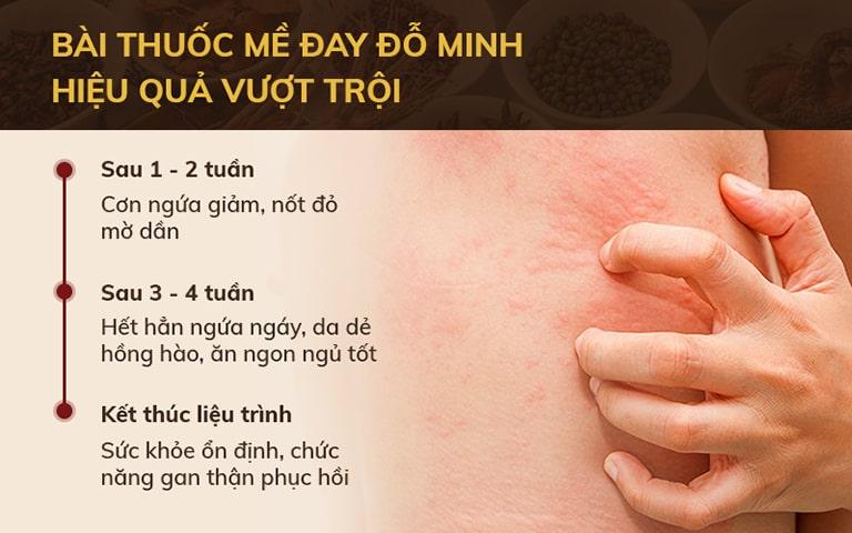 Tiến trình điều trị ngứa da, mẩn ngứa trời nóng tại Đỗ Minh Đường