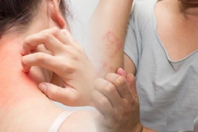 Mề đay có thể xuất hiện ở nhiều vùng da khác nhau