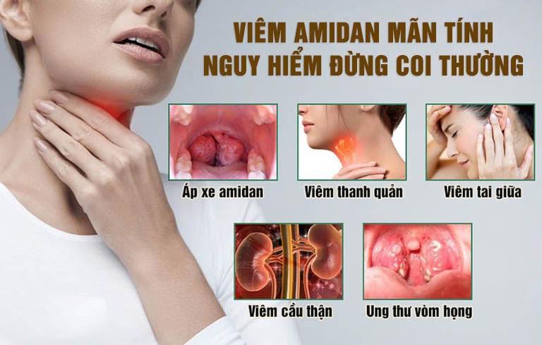 Bệnh viêm amidan gây ra nhiều biến chứng nguy hiểm