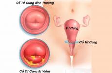 Viêm cổ tử cung có thể gây ra nhiều biến chứng nguy hiểm