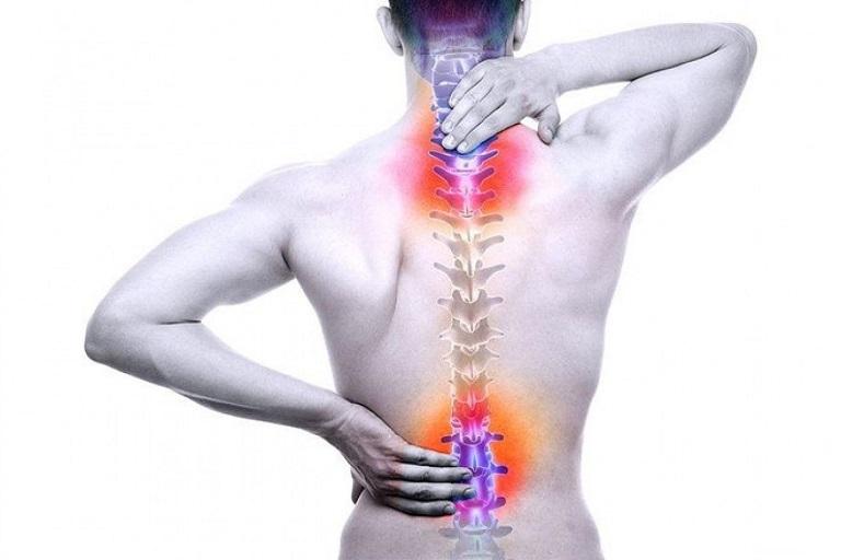 Vôi hóa cột sống khiến người bệnh đau nhức vùng cột sống cổ, thắt lưng