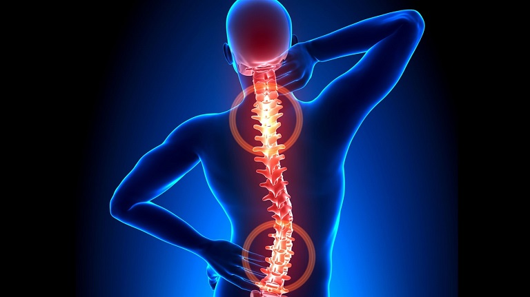 Vôi hóa cột sống khiến người bệnh đau nhức, khó vận động