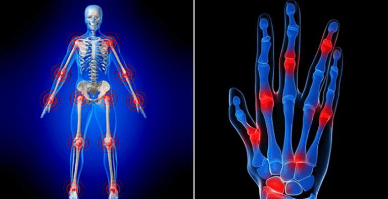 Viêm khớp dạng thấp có thể ảnh hưởng đến nhiều khớp cùng lúc